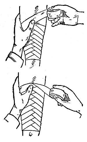 Спиральная повязка с