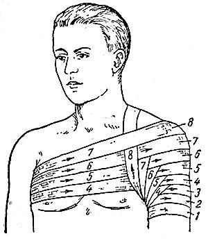 Правильное наложение повязок на плечевой сустав лечение коленного сустава в мурманске адрес центра