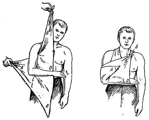 Косынка при переломе руки своими руками